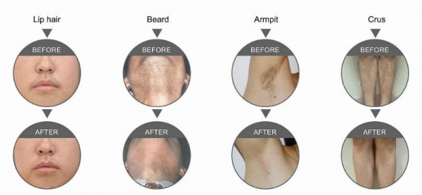 Laser Hair Removal Islamabad Pakistan Contact Phone Address